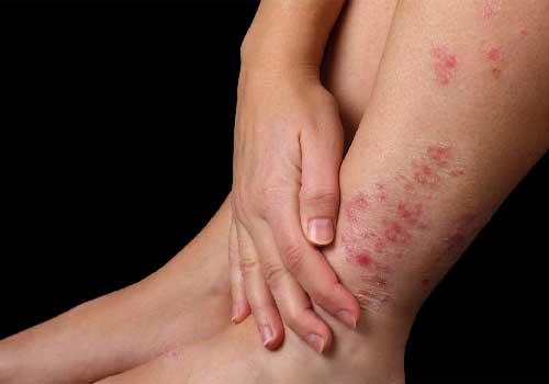 Bệnh vảy nến á sừng là gì? nguyên nhân triệu chứng biểu hiện