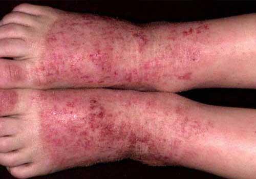 Bệnh viêm da cơ địa có nguy hiểm và chữa khỏi được không?