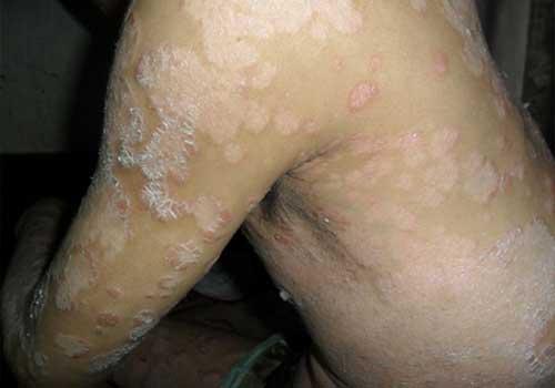 Viêm da cơ địa nếu không được chữa trị sớm có thể dấn đến nhiều biến chứng nguy hiểm