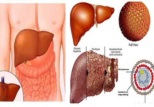 Bệnh viêm gan B,C là gì?triệu chứng nguyên nhân cách điều trị