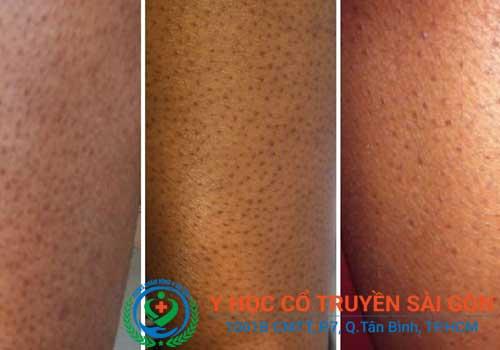 Bệnh viêm nang lông có nguy hiểm không có chữa khỏi không?