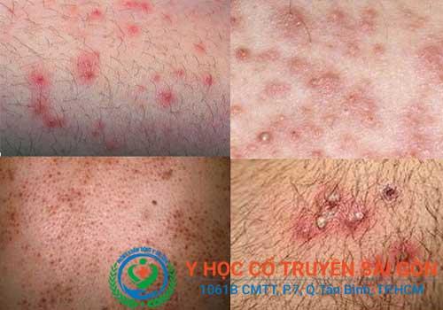 Bệnh viêm nang lông gây mất thẩm mĩ