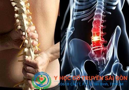 Bệnh xẹp đĩa đệm cột sống là một dạng thái hóa đốt sống lưng và cổ