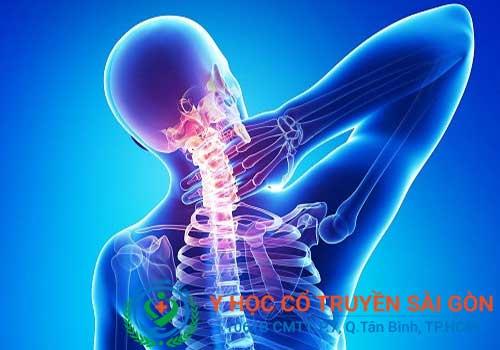 Triệu chứng của xẹp đĩa đệm đột sống lưng và cổ là gây đau nhói vùng lưng hoặc cổ