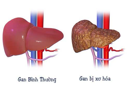 Bệnh xơ hóa gan là gì? Dấu hiệu nguyên nhân và cách điều trị