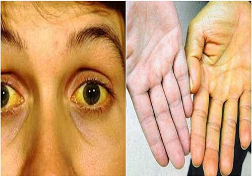 Bệnh xơ hóa gan là gì dấu hiệu nguyên nhân và cách điều trị
