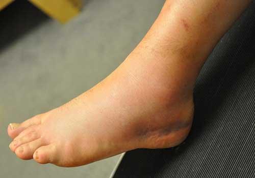 Cách chữa bong gân cổ ngón chân nhanh nhất