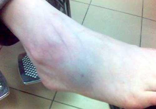 Bị bong gân cổ chân bao lâu thì khỏi?
