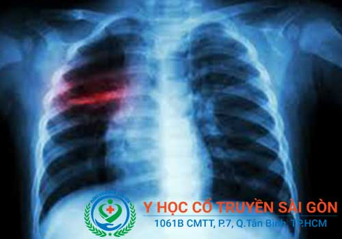 Đau ngực trái do ung thư phổi