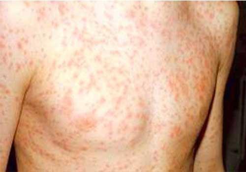 Phát ban là một trong những biểu hiện của HIV ở 3 tháng đầu