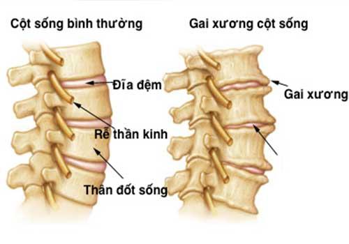 Biểu hiện của bệnh gai cột sống lưng và cổ như thế nào?