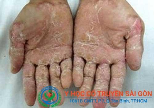 Bong tróc nứt nẻ da chân tay là bệnh gì?
