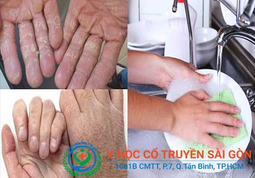 Bong tróc nứt nẻ da chân tay là do bệnh á sừng thường phát triển mạnh vào mua khô hoặc khi tiếp xúc với hóa chất
