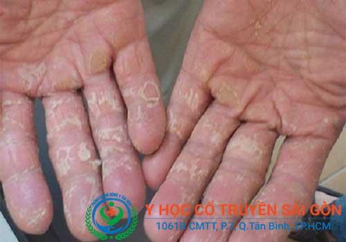 Bong tróc nứt nẻ da chân tay là do bệnh á sừng