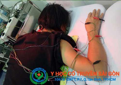 Cách chữa đau vai gáy cổ bằng châm cứu
