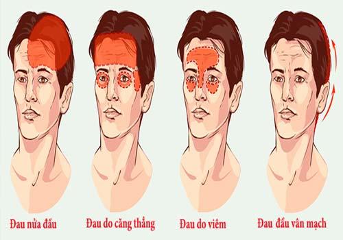 Các loại bệnh đau đầu thường gặp 1