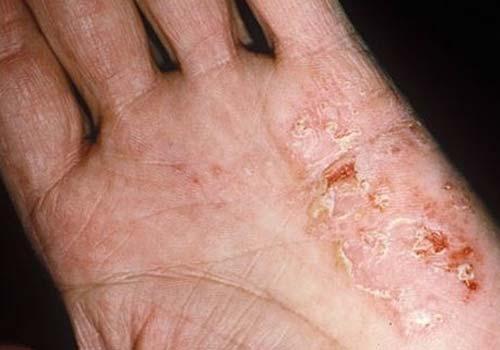 Cách chữa bệnh chàm khô ở mặt, tay và chân