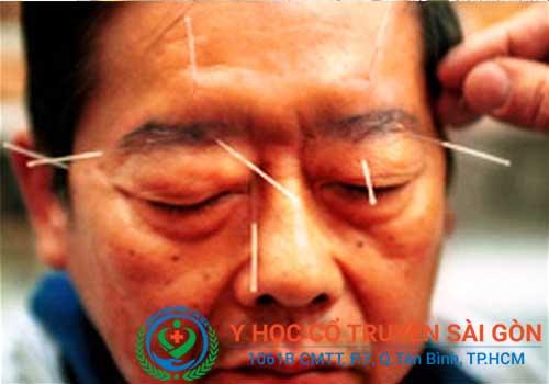 Cách chữa bệnh đau vai gáy cổ bằng diện chẩn