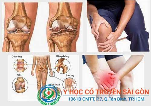 Cách chữa bệnh khô khớp háng, vai, cổ tay, gối nhanh nhất