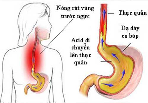 Bệnh trào ngược dạ dày là gì Nguyên nhân biểu hiện triệu chứng