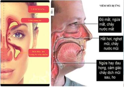 Viêm mũi dị ứng có thể điều trị dứt điểm bằng các bài thuốc Đông y