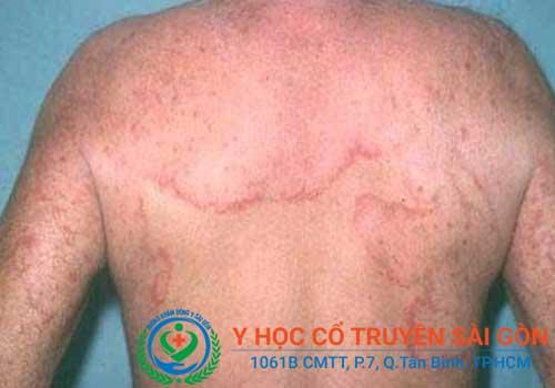 Chữa viêm da dị ứng ở mặt, lưng, nách cần kết hợp các bài thuốc uống trong, thuốc bôi và ngâm rửa