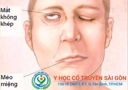 Liệt dây thần kinh số 7 là một dạng tổn thương dây thần kinh ở vùng mặt
