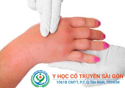 Cách chữa viêm bao gân gấp ngón tay, đầu gối, cổ tay theo YHCT
