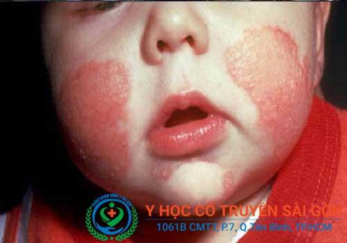 Bệnh chàm rất thường gặp ở trẻ nhỏ