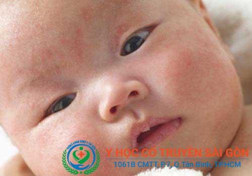 Cách điều trị bệnh chàm sữa ở trẻ con bằng thảo dược