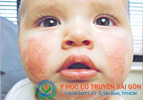 Cách điều trị và chữa bệnh chàm sữa ở trẻ con như thế nào?