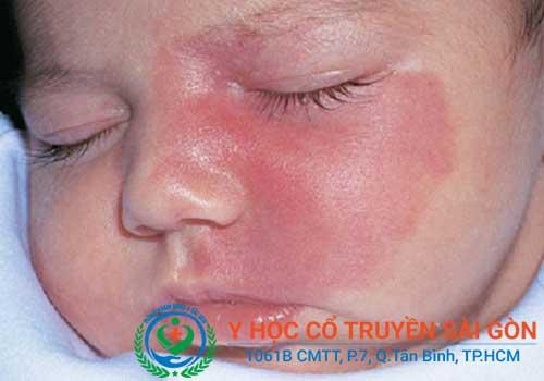 Cách điều trị và chữa bệnh chàm sữa ở trẻ con
