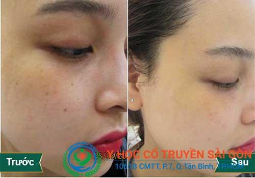 Cấy chỉ chữa nám da, làm giảm vết nhăn áp dụng được cho nhiều lứa tuổi