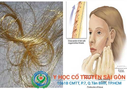 Chỉ vàng dùng để cấy chỉ chữa nám da, làm căng da mặt