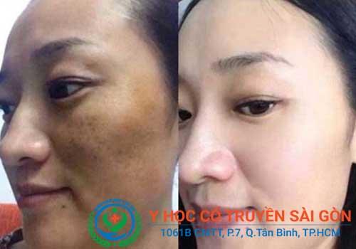 Cấy chỉ chữa nám da, giảm vết nhăn được nhiều chị em tin dùng