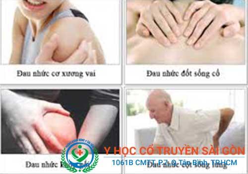 Cấy chỉ có thể chữa được đau vai gáy, đau lưng và tê tay?