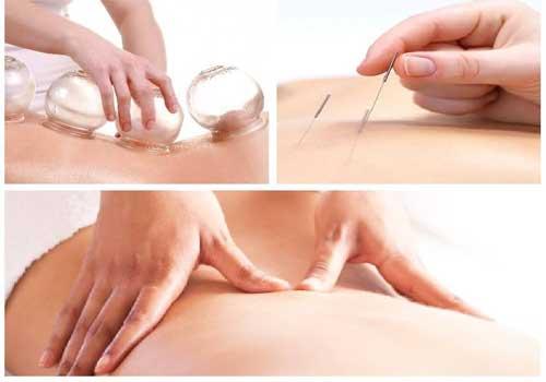 Bảng giá dịch vụ châm cứu bấm huyệt massage