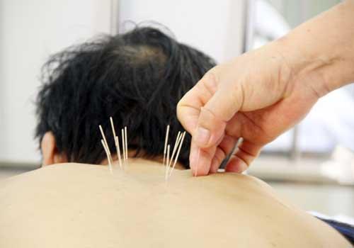 Phương pháp châm cứu chữa bệnh đau lưng ù tai 2
