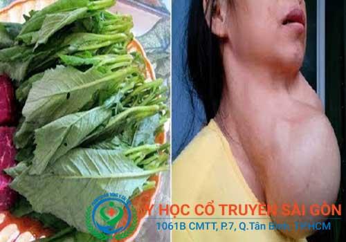 Chữa bệnh bướu cổ bằng cây cải trời và đu đủ có hiệu quả thật không?