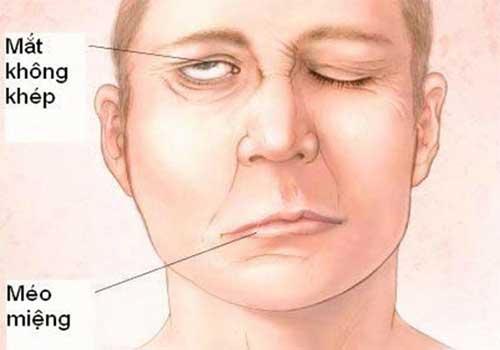 Chữa bệnh đau liệt viêm dây thần kinh ngoại biên số 7 như thế nào?