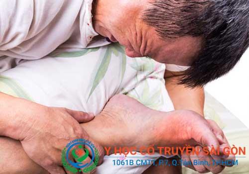 Chữa bệnh gút bằng lá trầu, lá tía tô hoặc nước dừa được không?