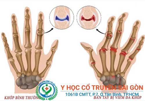 Đau nhức xương khớp là bệnh mãn tính nên cần phải chữa trị cẩn thận