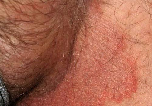 Chữa hắc lào lang beng ở vùng kín, háng, bộ phận sinh dục dứt điểm
