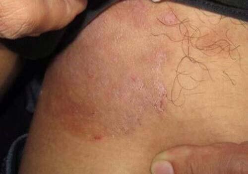 Chữa hắc lào lang beng ở vùng kín, háng, bộ phận sinh dục dứt điểm 1