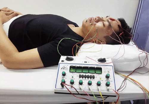 Chữa liệt dây thần kinh số 7 ngoại biên bằng thuốc nam