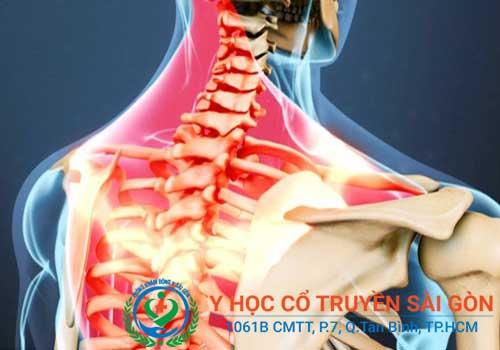 Viêm dây thần kinh cánh tay, vai gáy và đầu do nhiều nguyên nhân gây ra