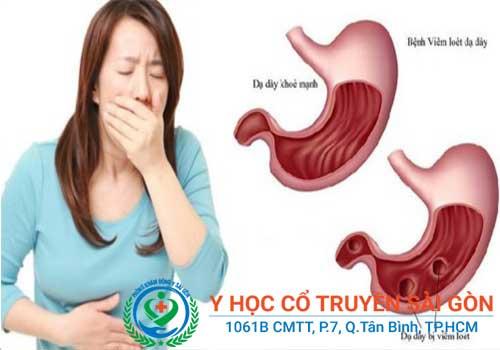 Đau dạ dày có bị hôi miệng không?