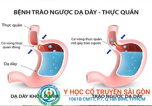 Đau dạ dày thường gây ra tình trạng trào ngược dạ dày, dẫn đến hối miệng