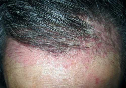 Dấu hiệu và cách chữa bệnh vảy nến da đầu
