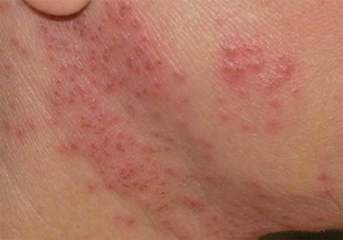 Dị ứng da là gì? nguyên nhân, triệu chứng và biểu hiện ra sao?